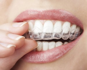 Look years younger with whiter teeth!!