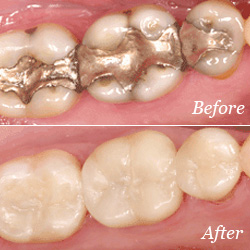 Composite vs. Amalgam fillings